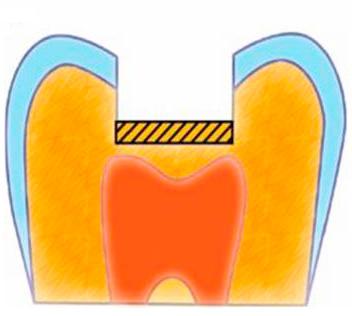 Для защиты пульпы от токсического воздействия пломбы на дно полости сперва устанавливают изолирующую прокладку.