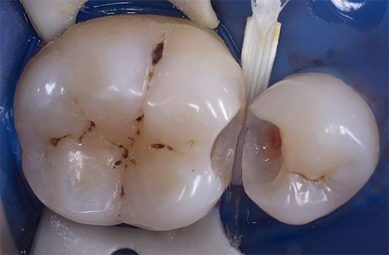 А так выглядят те же зубы с уже сформированной под пломбу полостью.