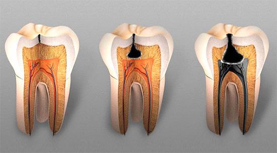 Острый глубокий кариес нередко характеризуется наличием узкого входа в кариозную полость и широким ее основанием.