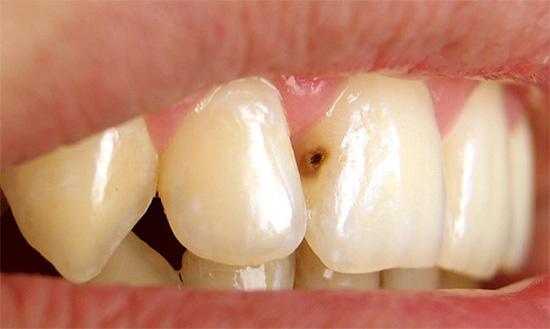 Глубокий кариес на переднем зубе