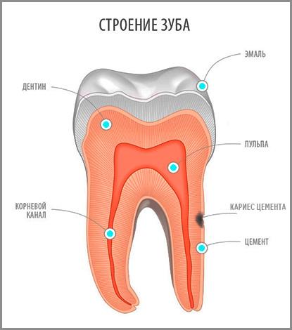 В стоматологической практике кариес цемента встречается довольно редко, однако эта патология является весьма коварной и при отсутствии лечения легко может привести к потере зуба...