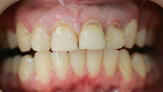 При появлении первых же признаков пришеечного кариеса следует сразу же обращаться к стоматологу, не дожидаясь усугубления ситуации.