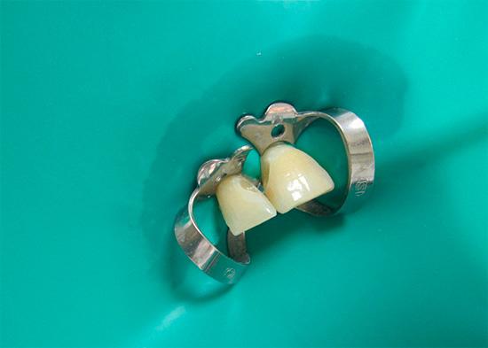Применение коффердама (тонкого резинового материала) позволяет изолировать зуб от остальной полости рта