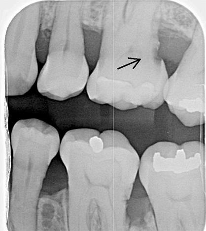 Рентгенологическое исследование помогает обнаружить кариес цемента в тех случаях, когда визуальное обнаружение затруднительно.