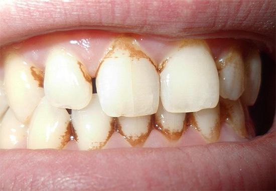 Скопление налета в пришеечной области зуба может спровоцировать кариозное разрушение цемента.