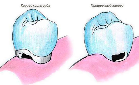 На картинке показана разница между пришеечным кариесом и кариозным разрушением корня зуба.