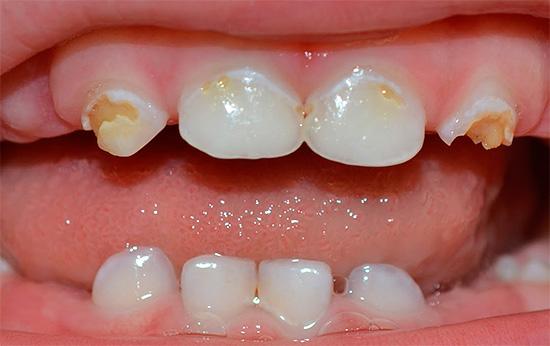 детские зубы фото с кариесом
