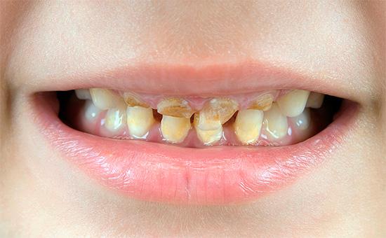 Как правило, при отсутствии адекватной гигиены полости рта кариес поражает сразу множество молочных зубов ребенка.