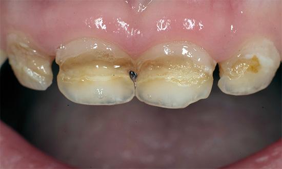 Циркулярный кариес молочных зубов