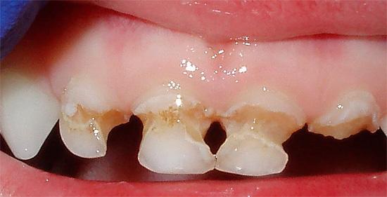 При таком состоянии зубов их коронковая часть легко может отломиться.