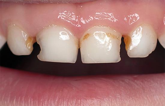 Кариес на передних молочных зубах ребенка