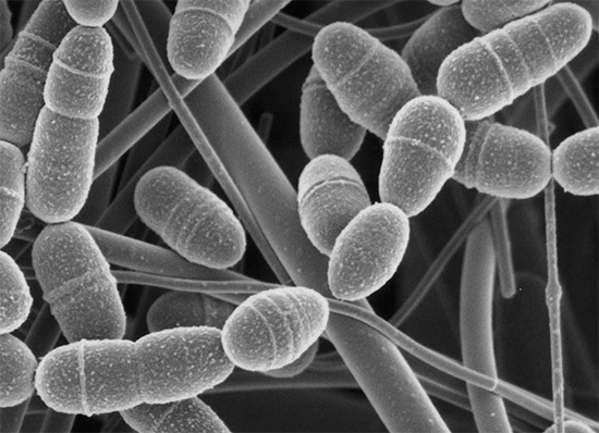 Анаэробные бактерии Streptococcus mutans - фото под микроскопом