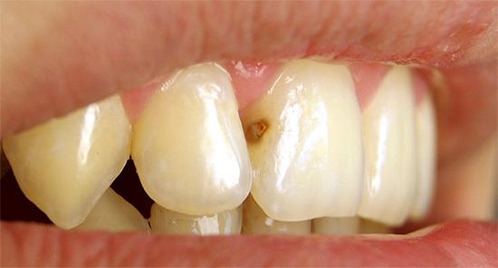 Как правило, кариесу на передних зубах люди уделяют особенное внимание, так как это непосредственно влияет на внешний вид человека и общее впечатление о нем.