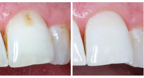 Так выглядит передний зуб до и после лечения по технологии Айкон