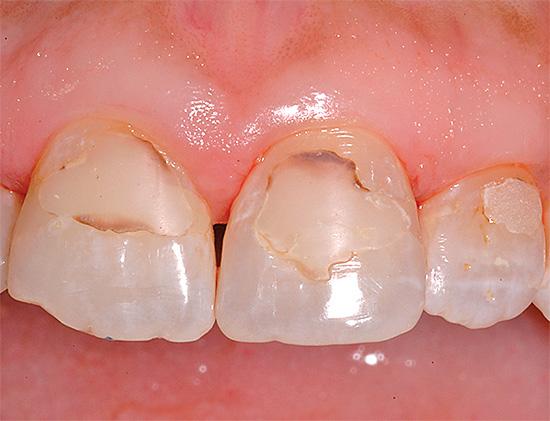 На фотографии показан пример вторичного кариеса на передних зубах под пломбами
