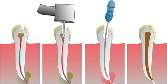 Основные этапы лечения пульпита