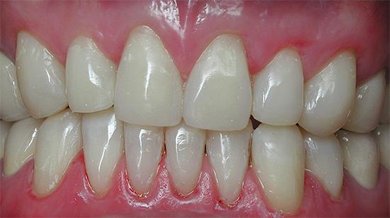Передние зубы после реставрации должны выглядеть максимально естественно