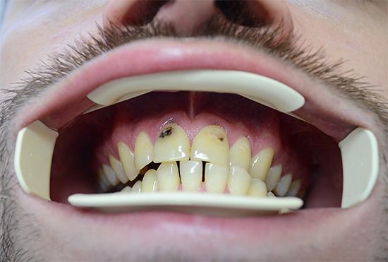 Серьезное поражение кариесом передних зубов может даже стать причиной психологических комплексов.