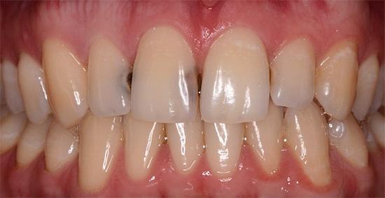 Кариес на контактных поверхностях передних зубов