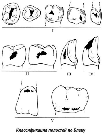 Классификация кариозных полостей по Блеку