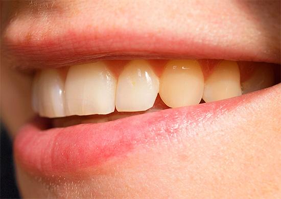 Сложность реставрации передних зубов во многом зависит от их текущего состояния.