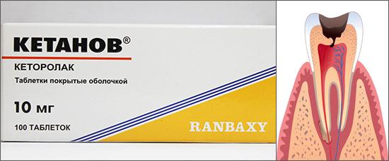 Посмотрим, насколько эффективно таблетки Кетанов способны снимать зубную боль...