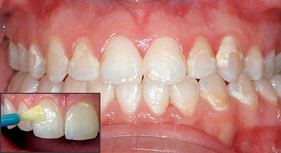 Реминерализующая терапия позволяет насытить зубную эмаль минеральными компонентами и восстановить тем самым ее первоначальные свойства.