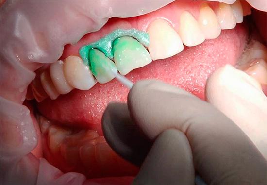 Технология лечения кариеса ICON позволяет получить весьма неплохие результаты даже за одно посещение.