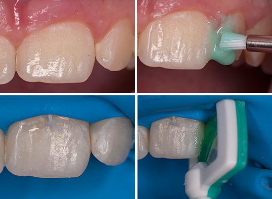 Начальные этапы лечения зуба по технологии ICON