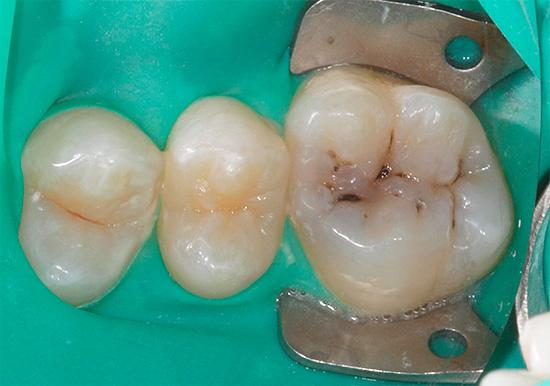 Фотография зуба с фиссурным кариесом до лечения
