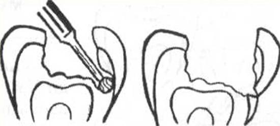 Ошибка при лечении кариеса, связанная с грубым движением бора и чрезмерным давлением на одну из стенок полости.