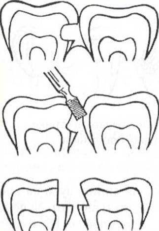 А тут врач по ошибке повредил соседний здоровый зуб