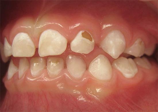 Если вовремя не начать лечение, то процесс разрушения постепенно затрагивает более глубоко лежащие ткани зуба...