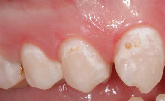 Консервативное лечение кариеса без иссечения тканей бормашиной используется в основном на начальных этапах деминерализации эмали.