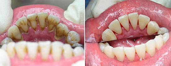 Перед процедурой лечения с больного зуба (а иногда и со всех) удаляется налет и минеральные отложения.