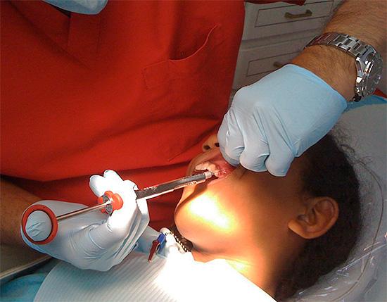 Так производится местная анестезия при лечении зубов