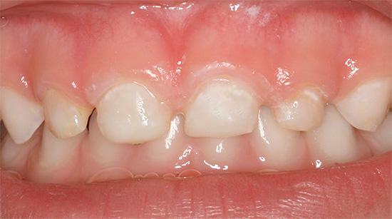Начальный кариес молочных зубов ребенка - видны белые участки деминерализации эмали