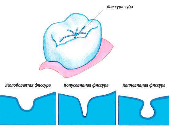 На картинке показаны различные формы зубных фиссур