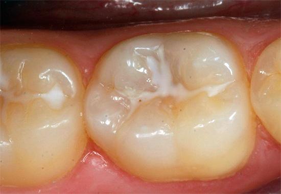 Жевательные зубы с герметизированными фиссурами