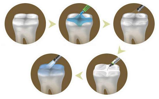 На схеме показаны отдельные этапы процедуры герметизации фиссур
