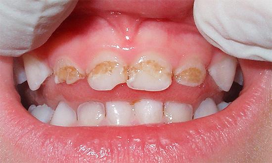 В большинстве случаев сильное разрушение молочных зубов у ребенка является во многом виной родителей, которые не уделили профилактическим мерам должного внимания.