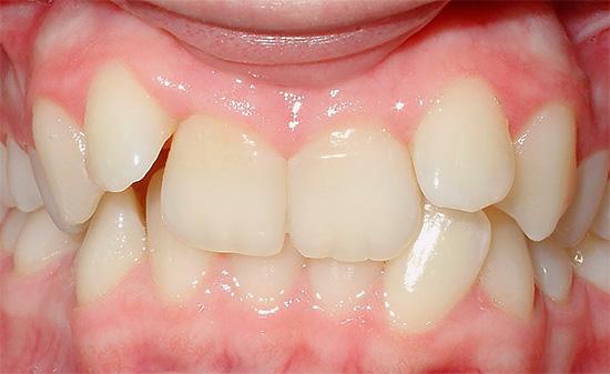 Если ребенок слишком рано лишится молочных зубов, то у него может сформироваться неправильный прикус.