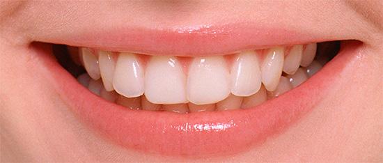 Практика показывает, что профилактические мероприятия позволяют эффективно защищать зубы от кариеса, сохраняя их здоровыми весьма длительное время.