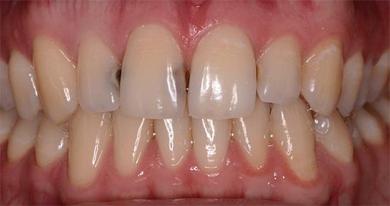 Пример межзубного кариеса на передних зубах