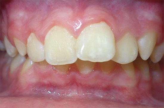 Зубочелюстные аномалии и неправильный прикус зачастую способствуют развитию кариеса.