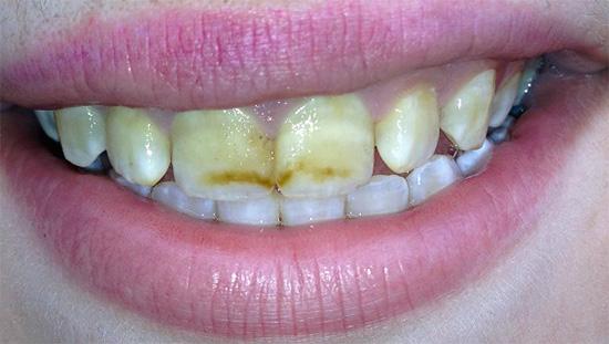 Резкое снижение содержания важных химических элементов в слюне беременной женщины может приводить к ускоренной деминерализации зубной эмали.