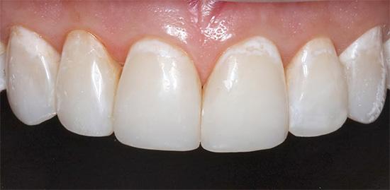Начальный кариес в стадии белого пятна - в пришеечной области зубов видны очаги деминерализации эмали.