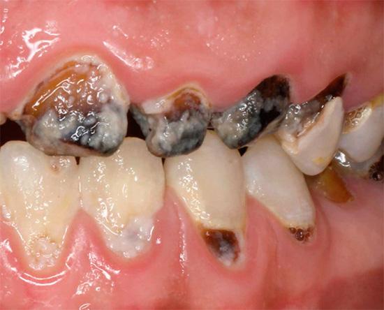 А так выглядит запущенный кариес, который может развиваться на фоне некоторых заболеваний и отсутствия гигиены полости рта.