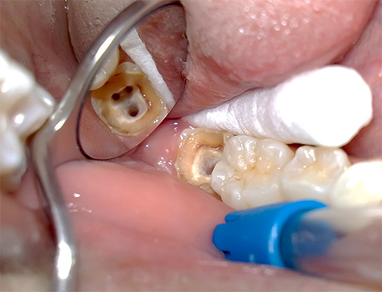 отбеливание зубов это косметическая процедура закон