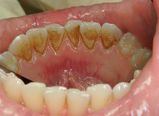 Минеральным отложениям наиболее подвержены нижние зубы вследствие обильного их омывания слюной.